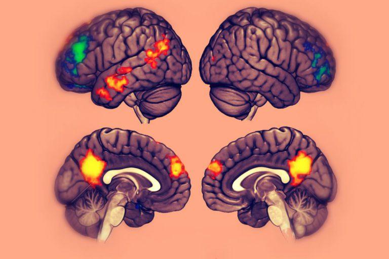 Kan man träna upp sin IQ?